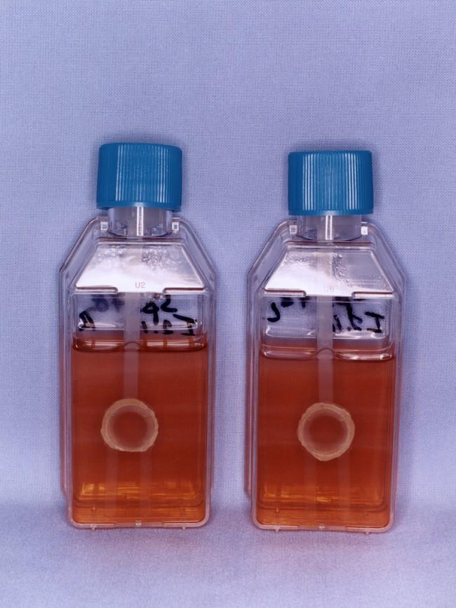 Cornea - Donor organs