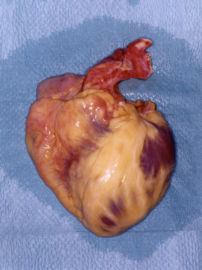 Heart - Donor organs
