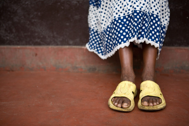 Masengesho sits outside her apartment wearing her one pair of shoes.